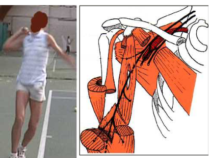 Cours-gratuit-Compression du nerf lors de la pratique sportive 1