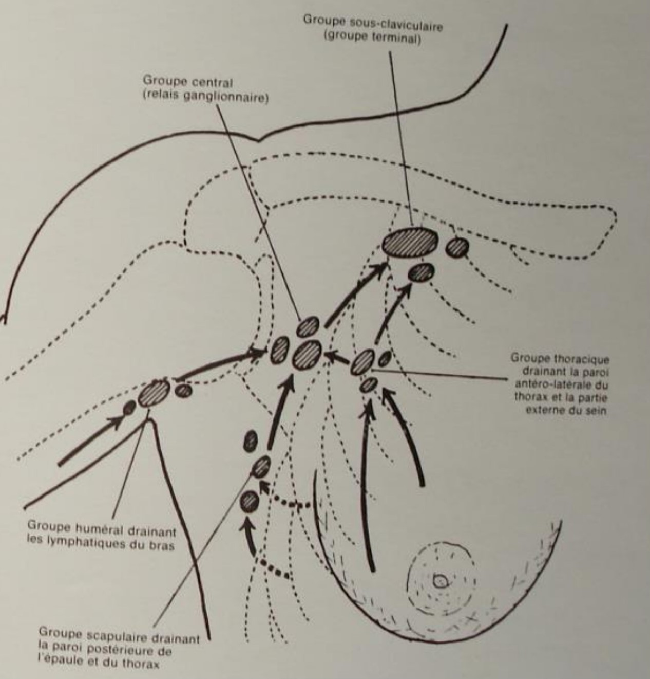 Lymphonoeuds profonds ( Fosse axillaire)
