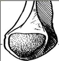 Cours-gratuit-Surface articulaire malleolaire fibulaire