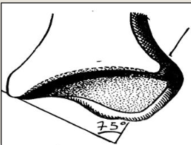 Cours-gratuit-Surface articulaire malleolaire tibiale