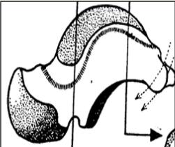 Cours-gratuit-Surface malleolaire mediale du talus