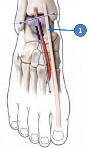 Cours-gratuit-artere dorsale du pied est accompagnee de ses deux veine satellites