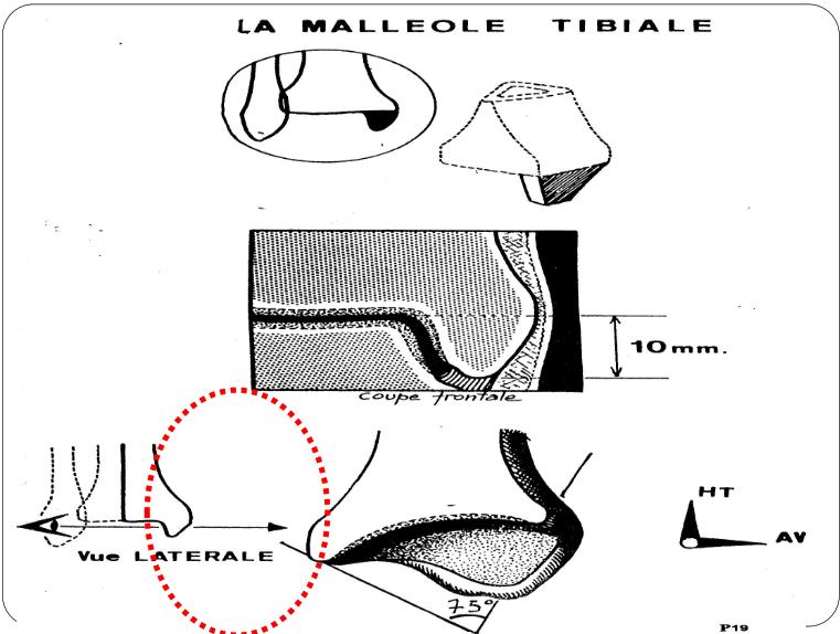 la malleole tibiale Articulation talo-crurale