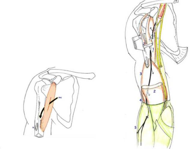 Cours-gratuit-le muscle coraco brachial puis s engage dans la loge anterieure du bras