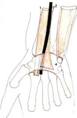 Cours-gratuit-muscles flechisseur radial du carpe