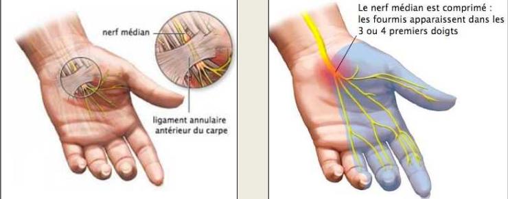 Cours-gratuit-nerf median Le syndrome du canal carpien 1