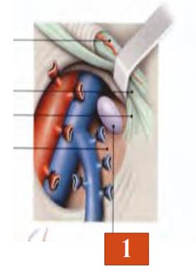 Les lymphonoeuds inguinaux profonds